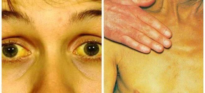 Что это такое холестатическая желтуха, каковы ее симптомы?