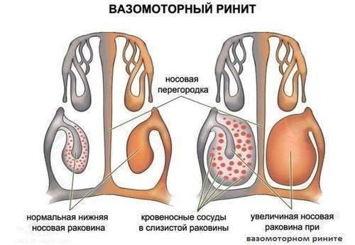 вазомоторный ринит при беременности лечение