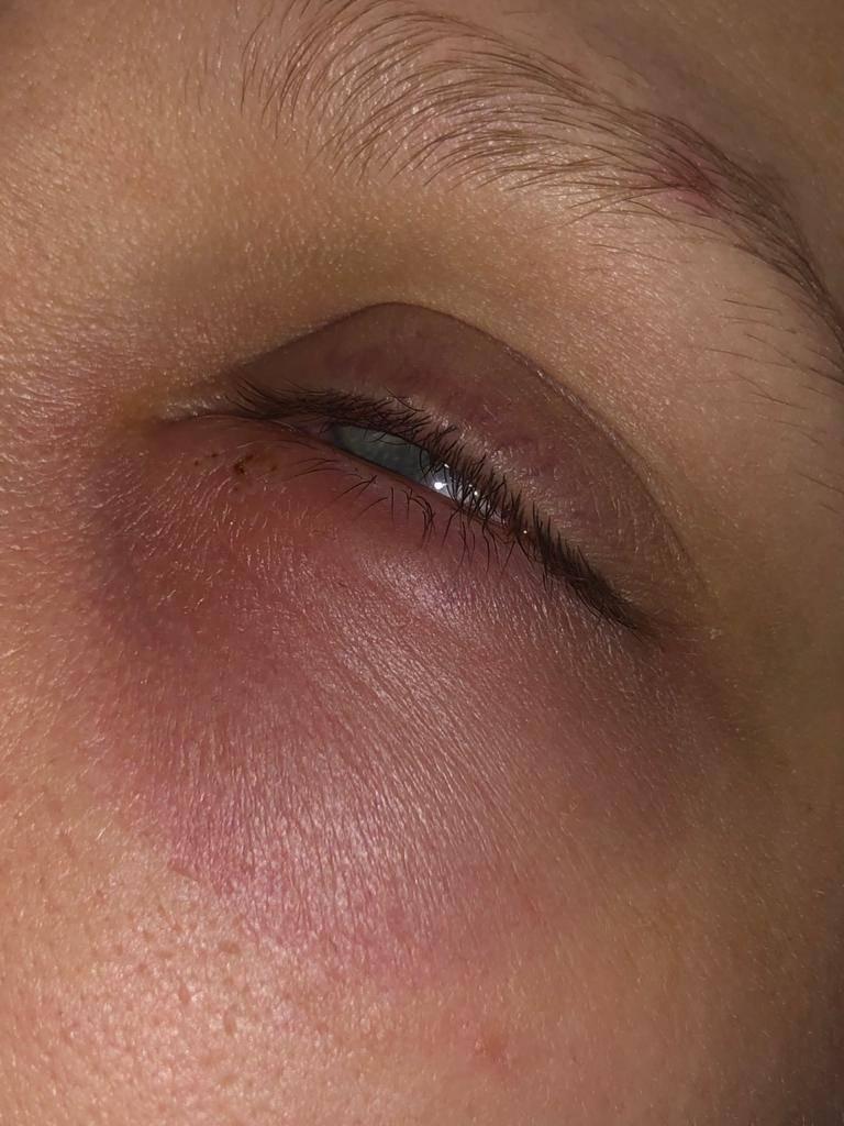 Продуло голову болит глаз