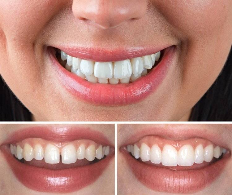 Топ-10 клиник для эстетической реставрации зубов