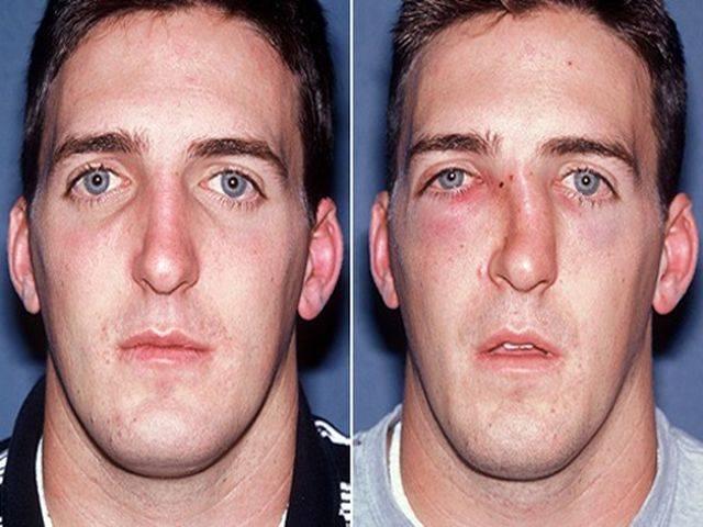 перелом носа без смещения лечение