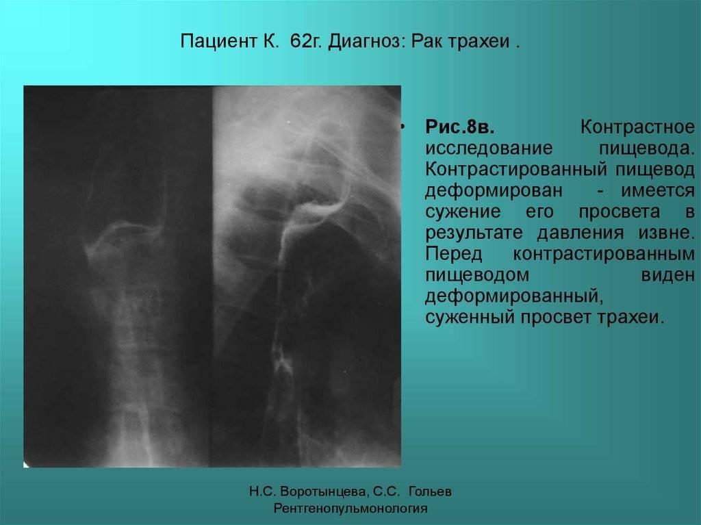 Рак бронхов и трахеи: развитие, симптомы и выявление, лечение