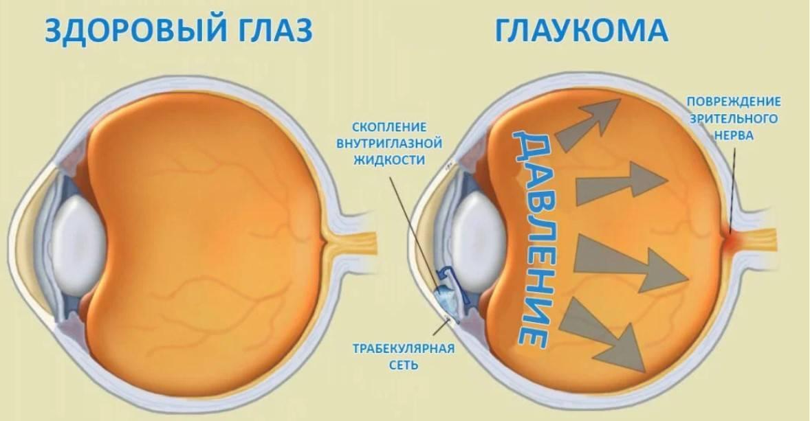 профилактика глаукомы глаза