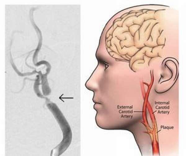 атеросклероз внечерепных отделов брахиоцефальных артерий со стенозированием