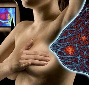 Как лечить мастопатию при менопаузе