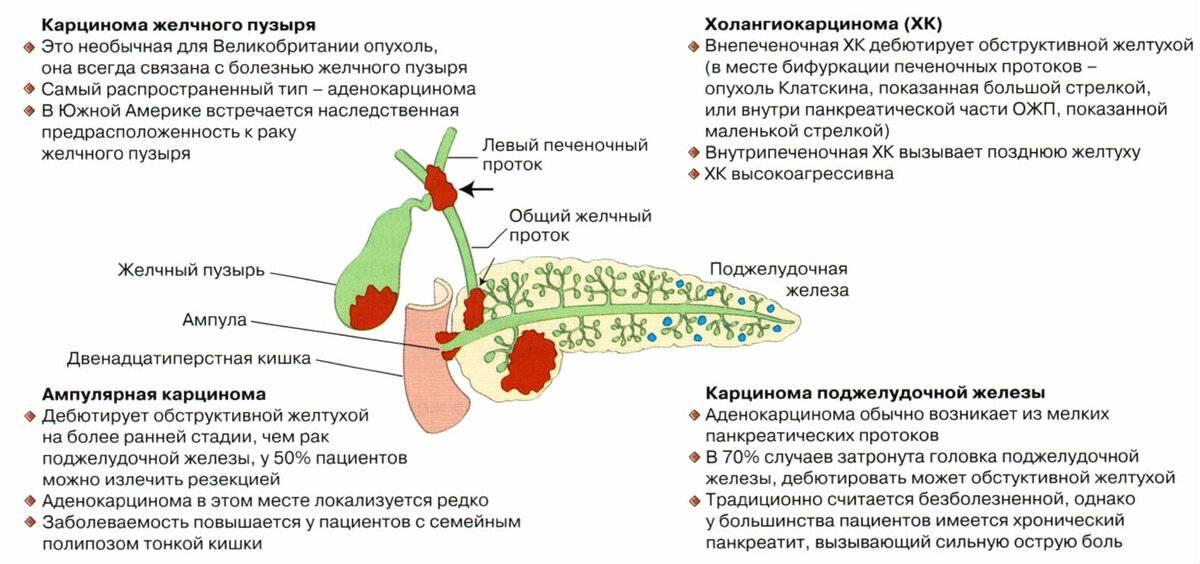 Рак желчного пузыря: диагностика и лечение