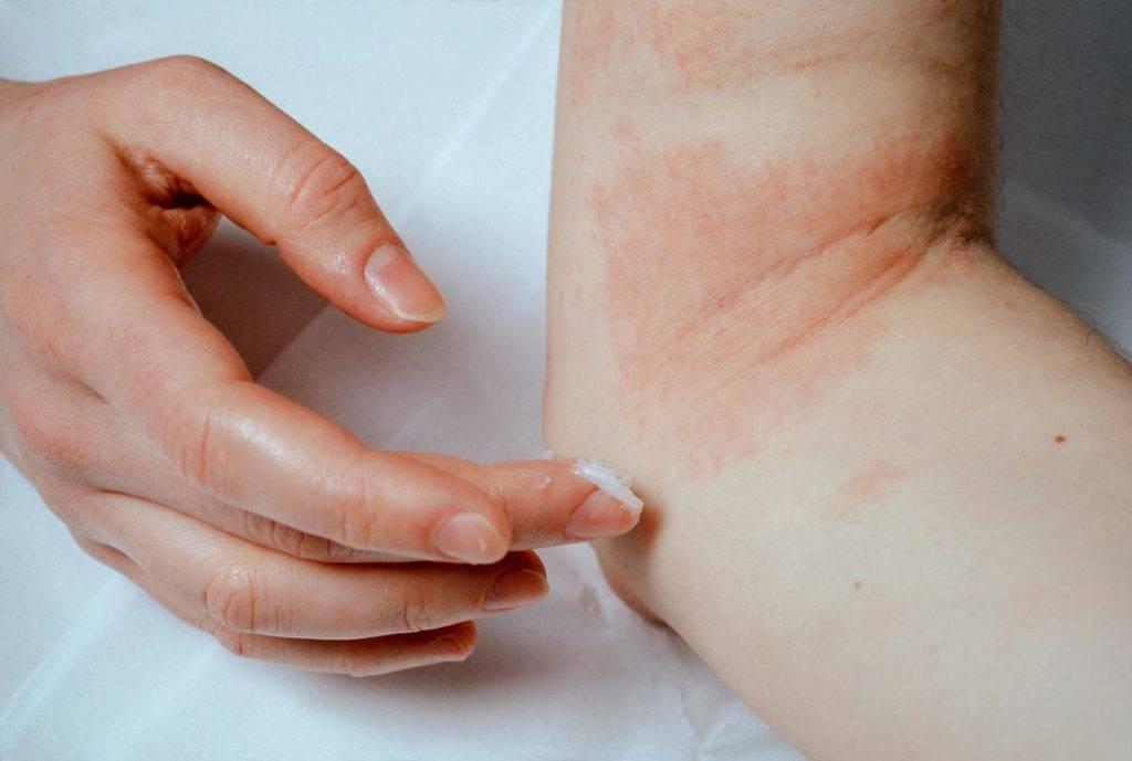 Причины появления и способы лечения аллергического дерматита при беременности