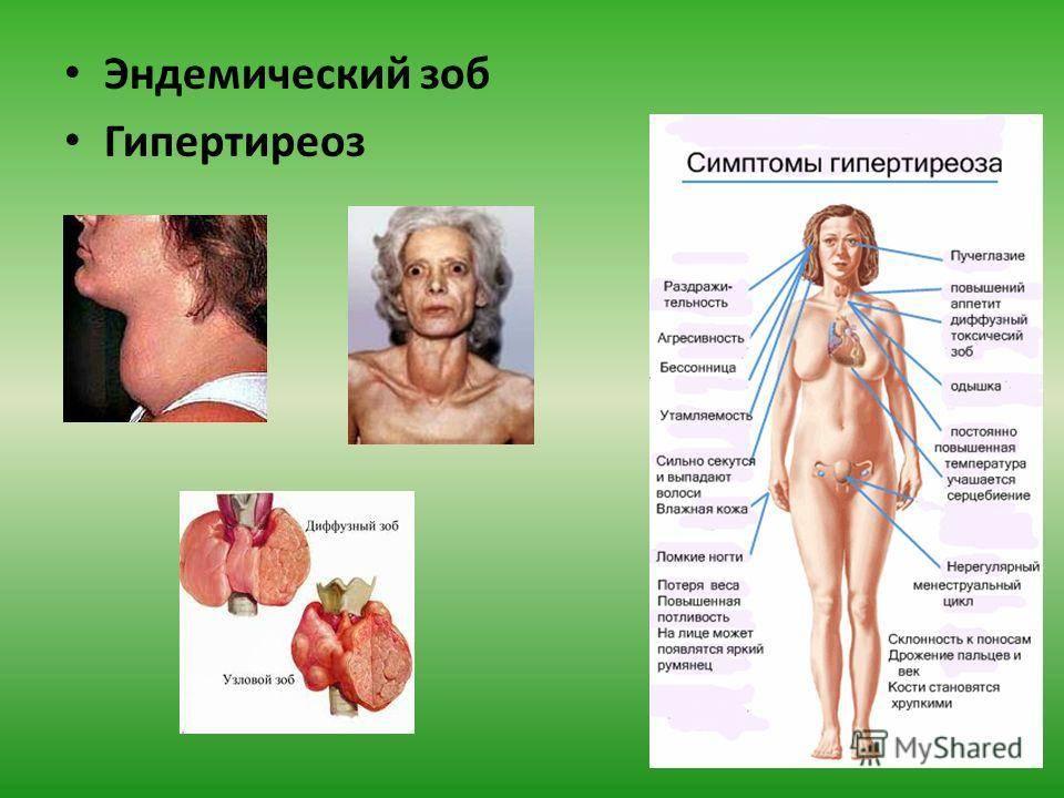 щитовидная железа болезни у женщин