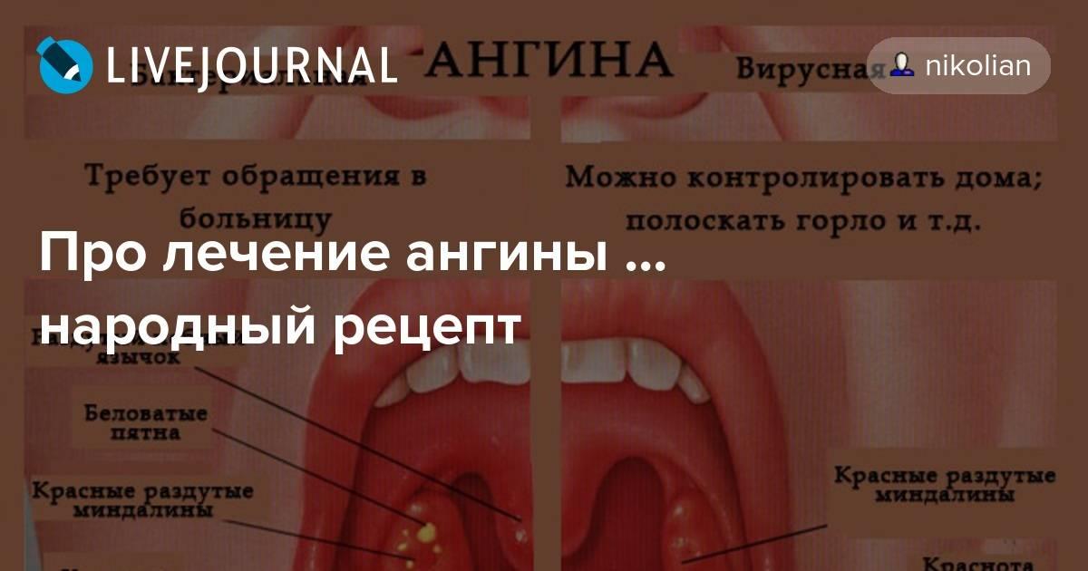 Вирусная ангина у детей: симптомы и лечение, фото горла, осложнения