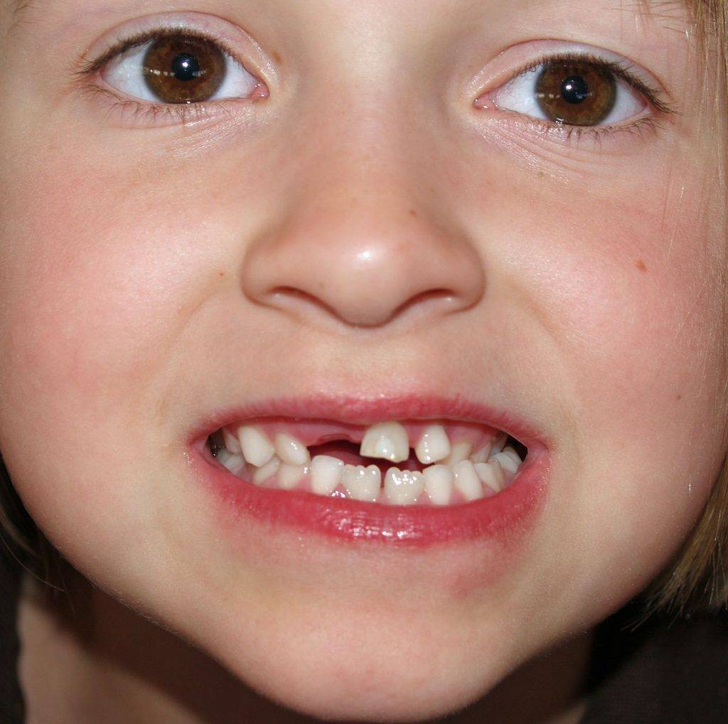 Кривые молочные зубы