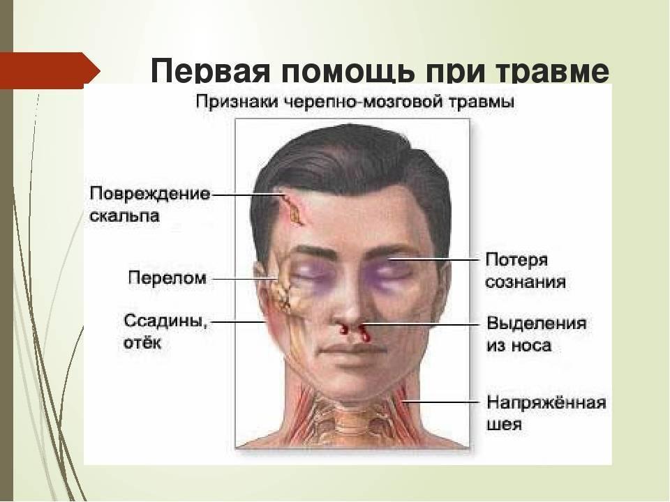 Разбитый нос: как лечить в домашних условиях перелом носа