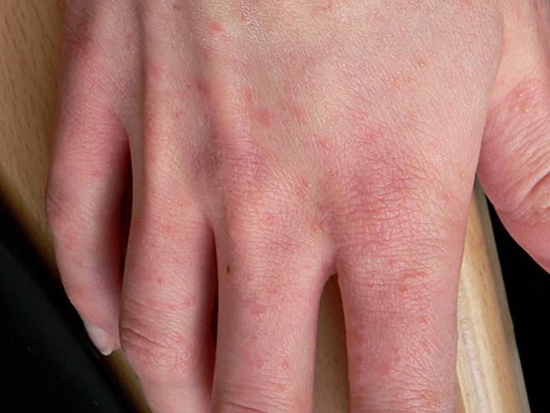 клещевой дерматит симптомы