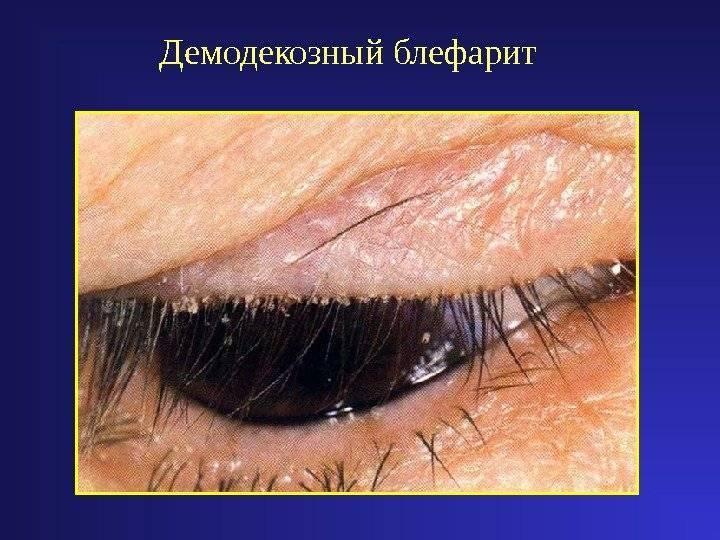 клещевой блефарит лечение