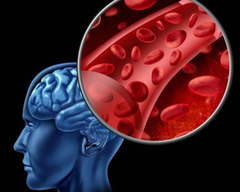 церебральный атеросклероз смерть