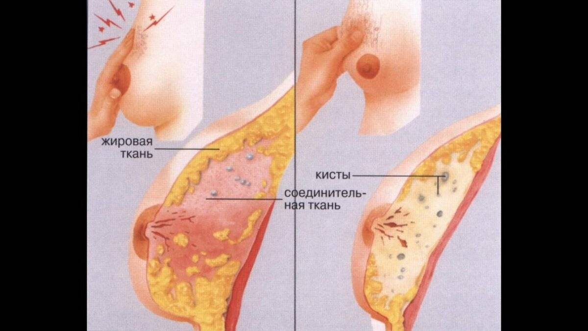 Во время приема противозачаточных болит грудь