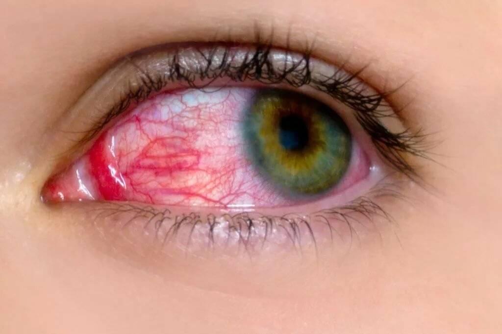 красные глаза от линз
