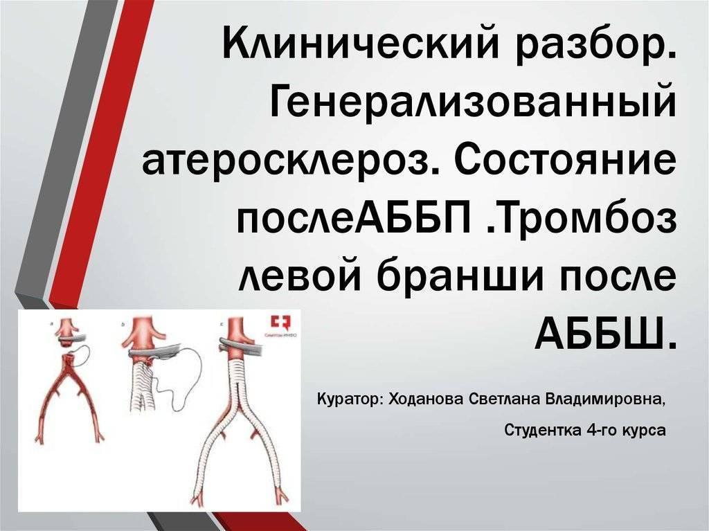 Симптомы и лечение атеросклероза сосудов нижних конечностей