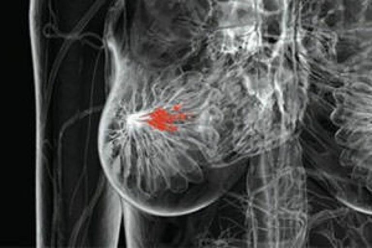 Чем опасна фибромиома грудной железы. как лечить народными средствами фиброаденому молочной железы фиброаденома молочной железы лечение народными средствами рецепты