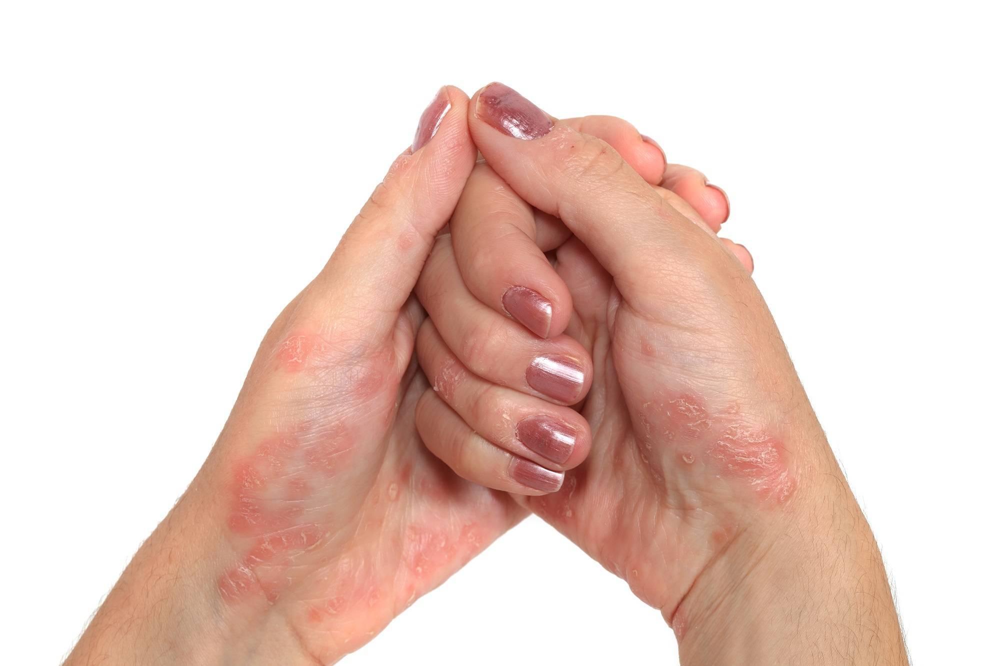 Пустулезный псориаз — лечение, причины, симптомы