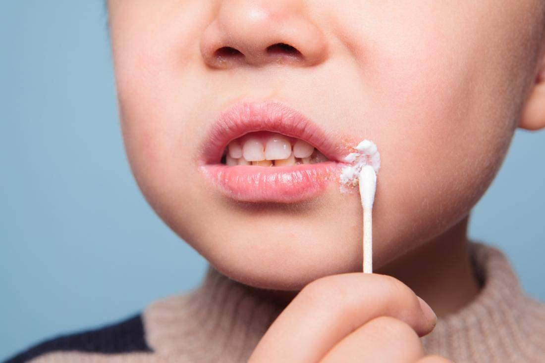 Вирус герпеса у детей: причины, симптомы и лечение