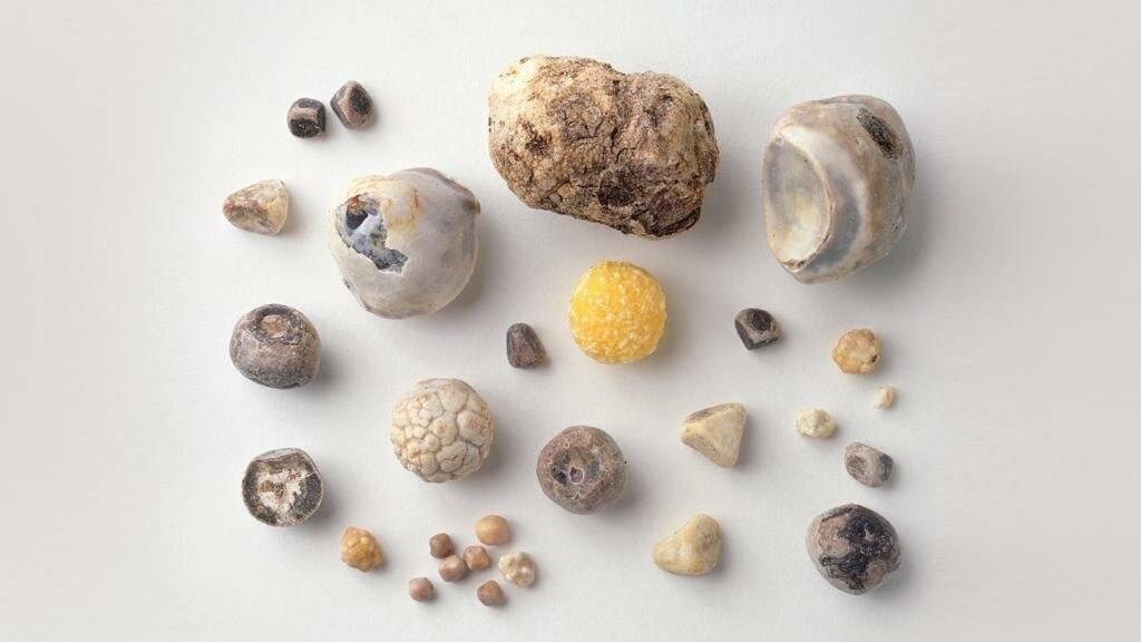 камень в желчном пузыре 8 мм