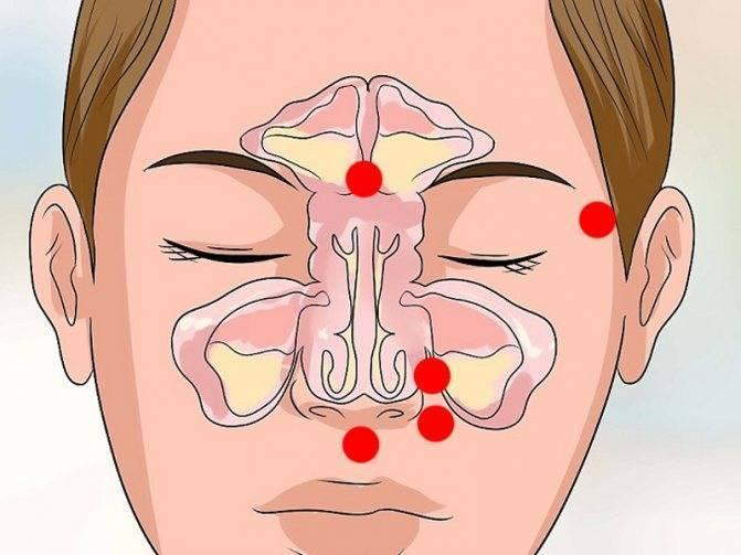 Можно ли греть нос при синусите