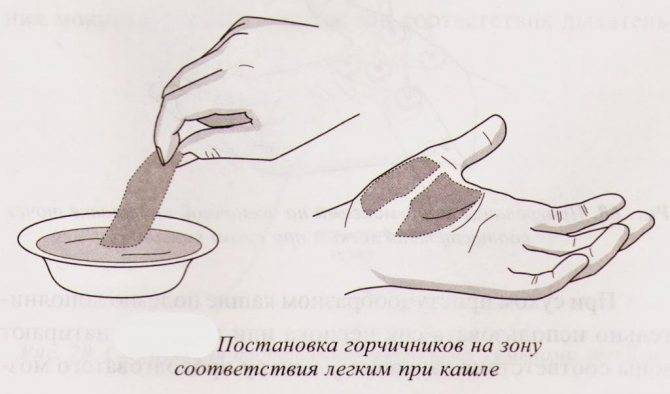 как ставить горчичники при трахеите