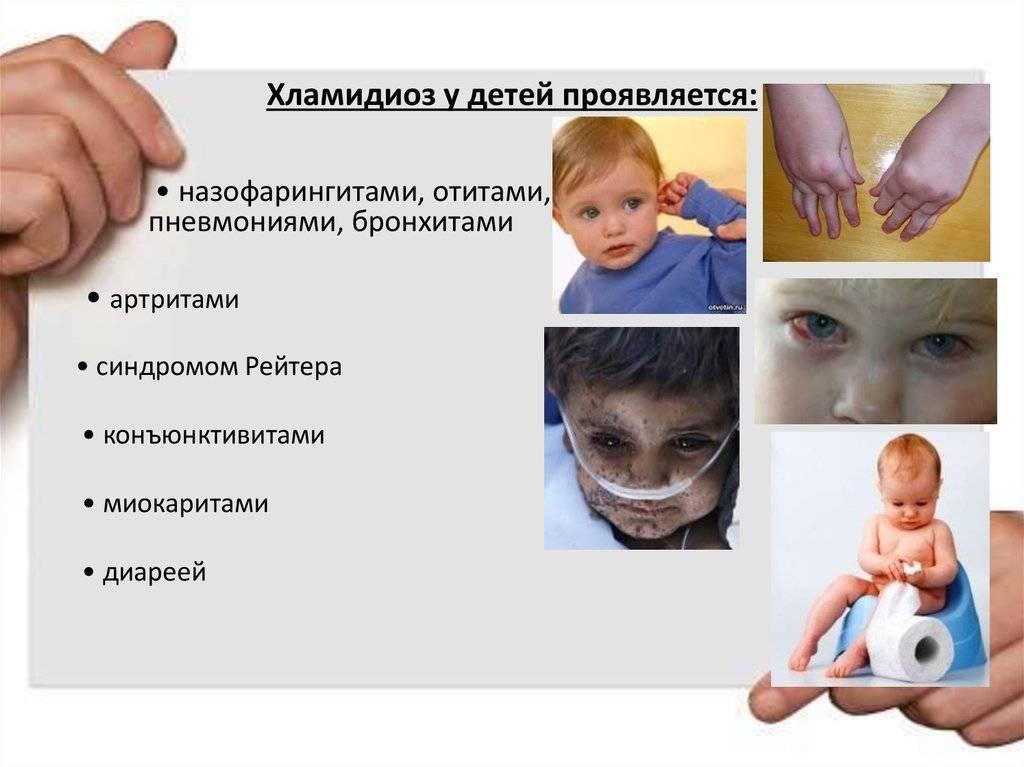 хламидийная инфекция у детей