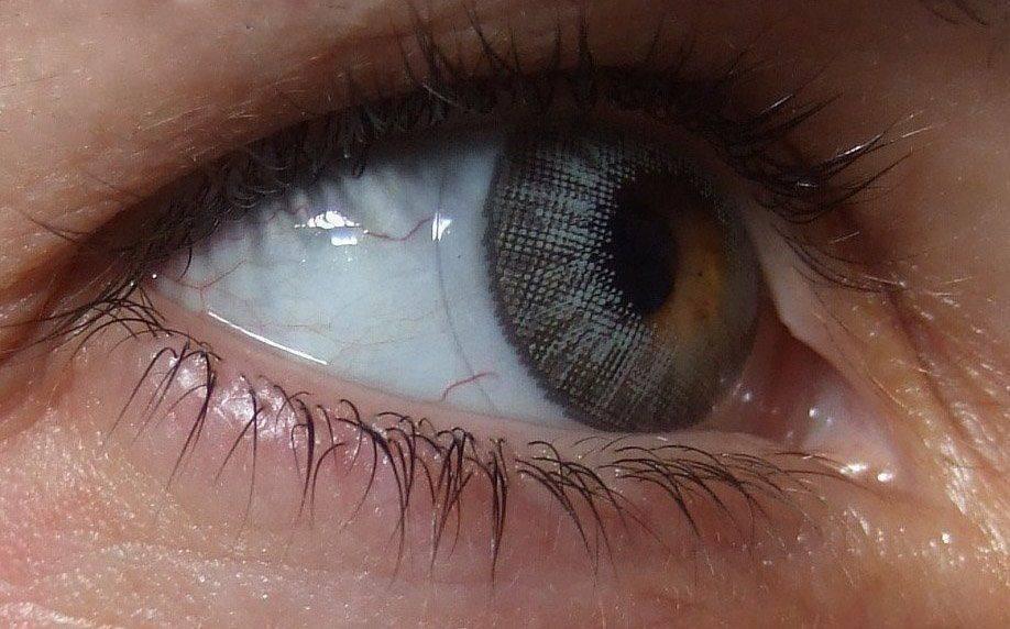 застряла линза в глазу
