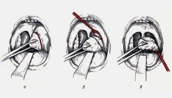 что такое абсцесс горла