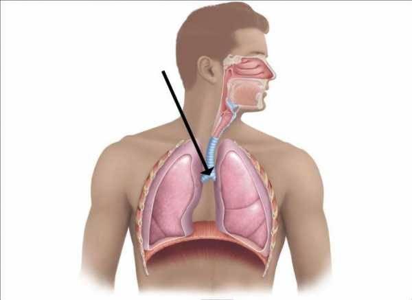 Заболевания трахеи – причины, симптомы, методы обследования