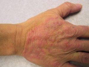 Псориаз – что это за болезнь?