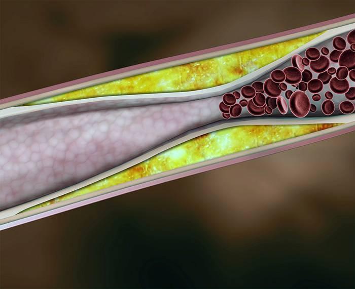 как очистить сосуды от холестерина травами