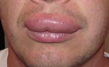 Убрать отек губ при герпесе