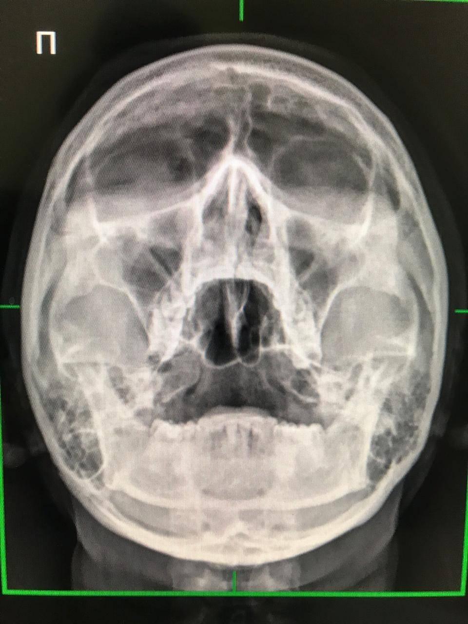 рентген носовых пазух что показывает