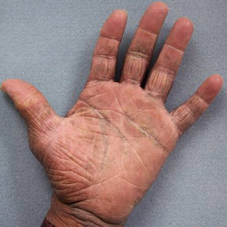 Тактика лечения и фото дерматита на руках