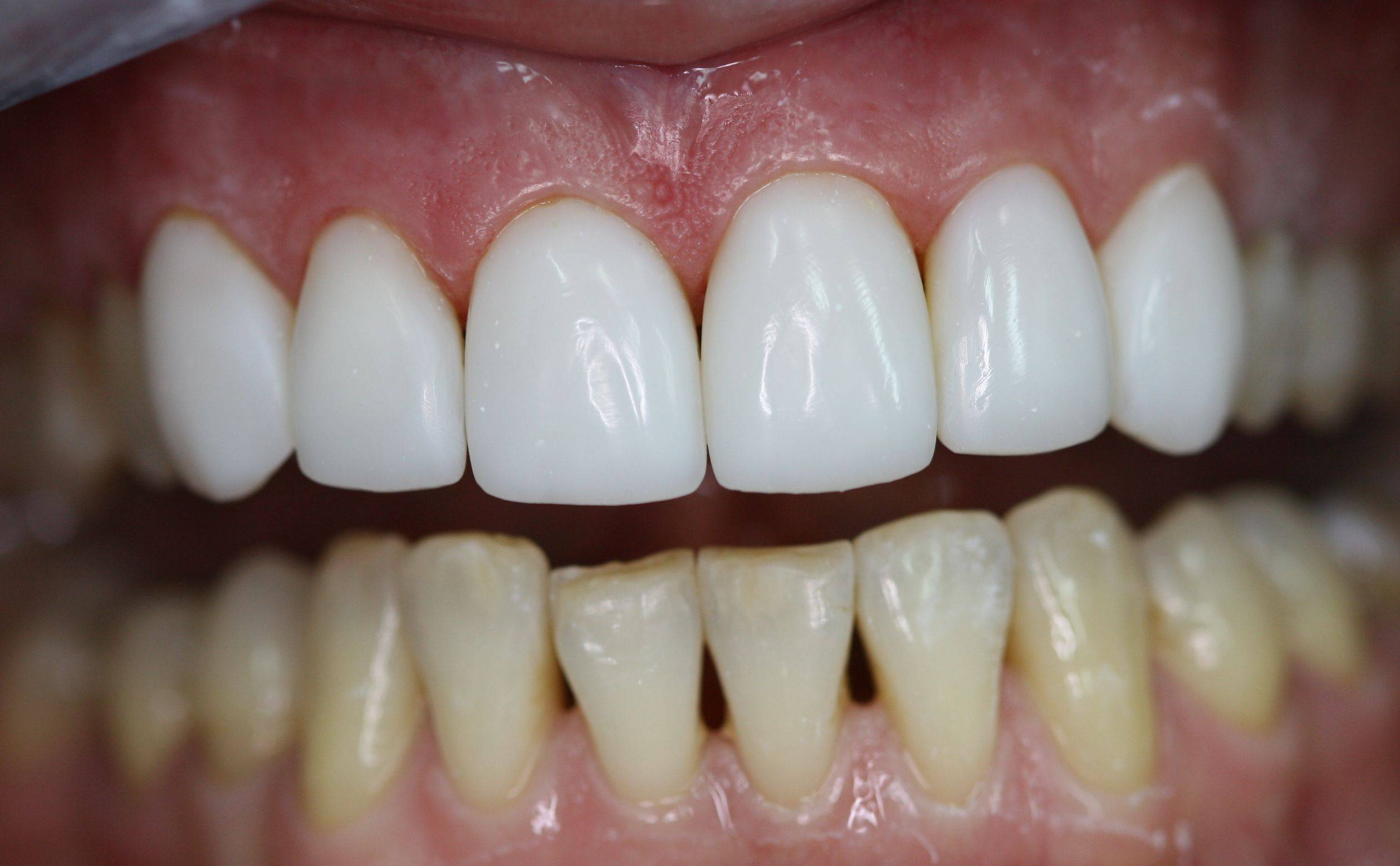Косметическая реставрация зубов в стоматологии «президент»