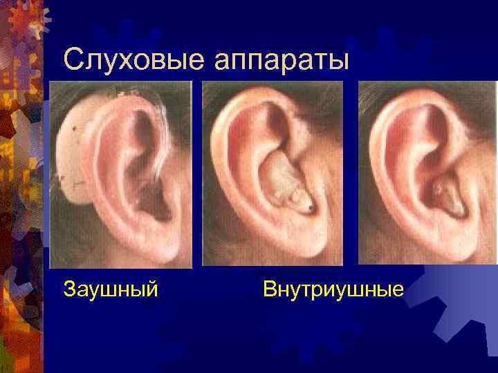 болезни внутреннего уха симптомы