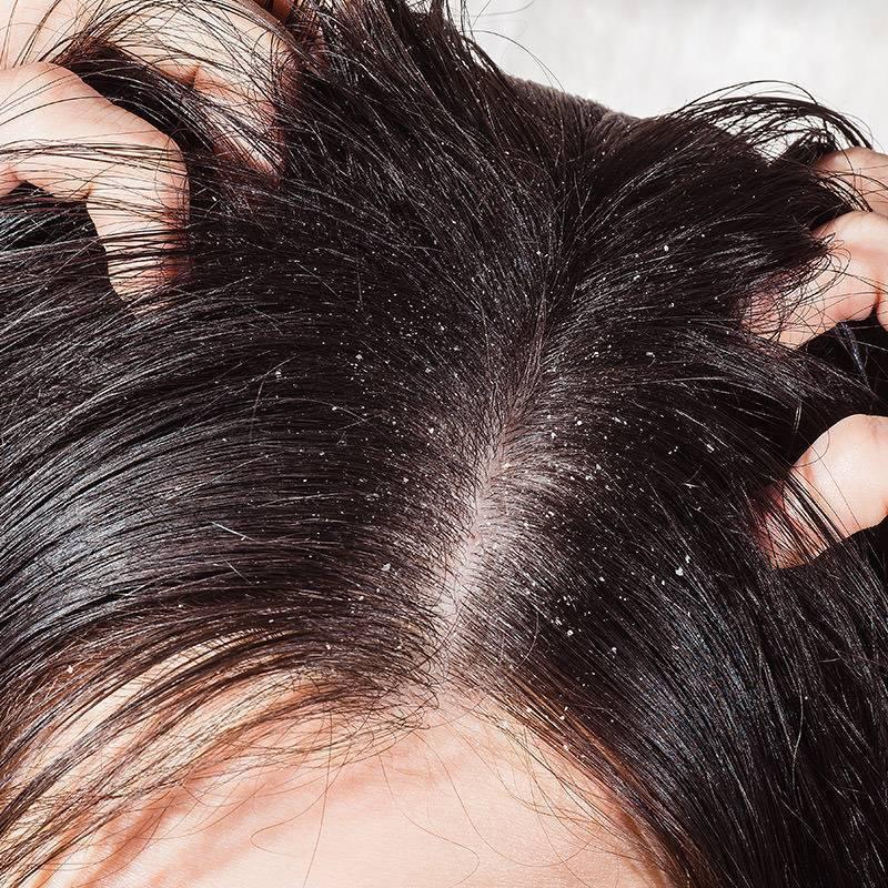 Выпадают ли волосы при псориазе головы