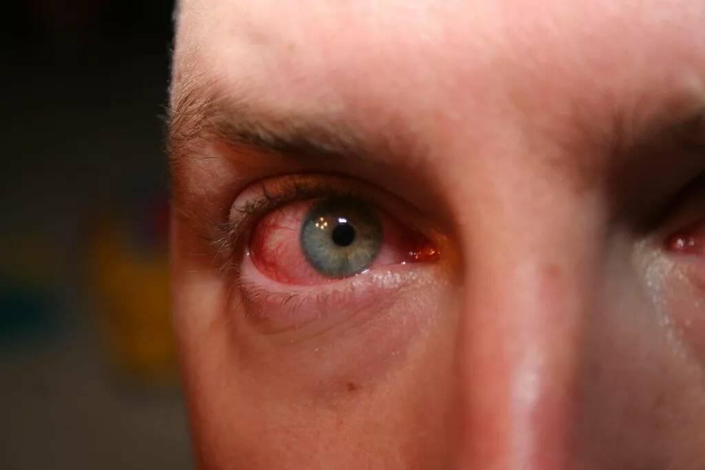 Стал болеть глаз от линз