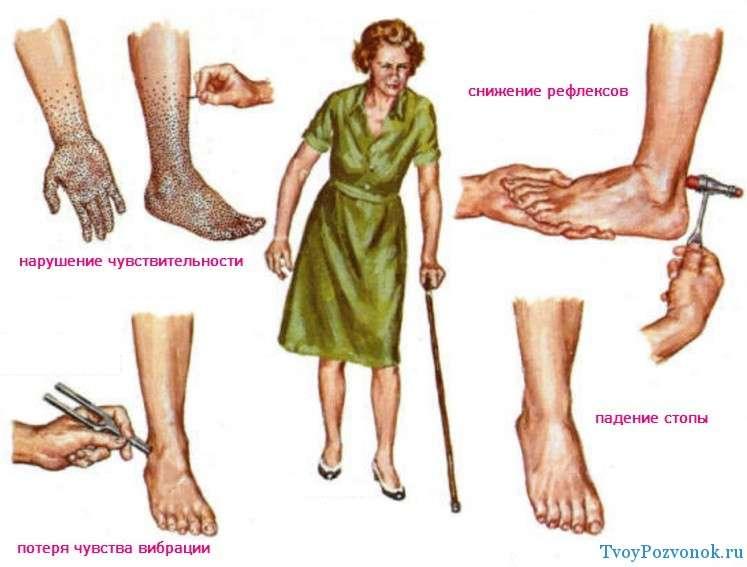 лечение полинейропатии нижних конечностей