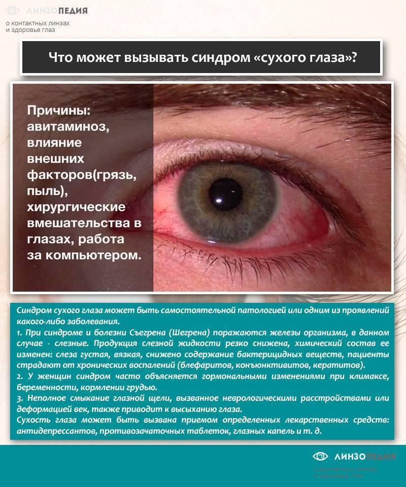 Синдром сухого глаза – причины недуга, лечение и самые эффективные капли