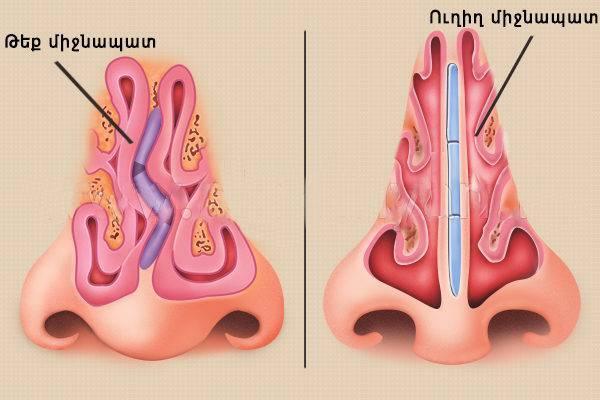 Искривление носовой перегородки – симптомы, признаки, диагностика, причины. лечение искривления: показания, противопоказания к операции :: polismed.com