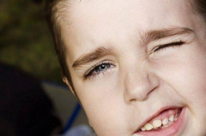 Причины частого моргания глазами у ребенка – как избавиться от надоедливого тика?