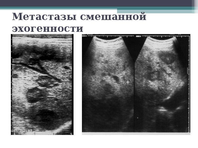 рак печени последняя стадия симптомы
