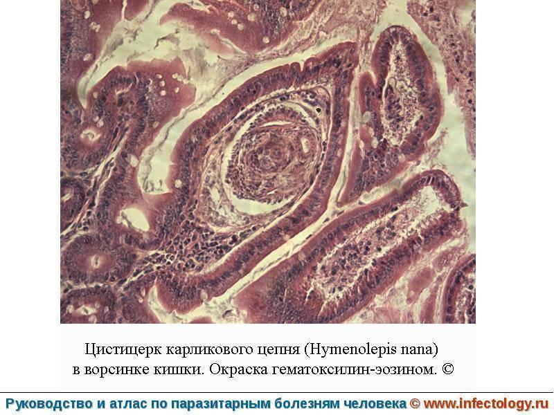 анализ на гименолепидоз как сдавать