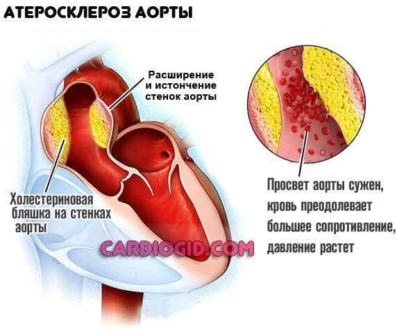 атеросклероз аорты что это как лечить
