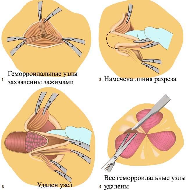 иссечение геморроидальных узлов