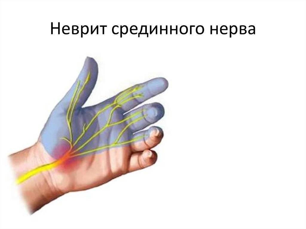 Как проявляется нейропатия лучевого нерва