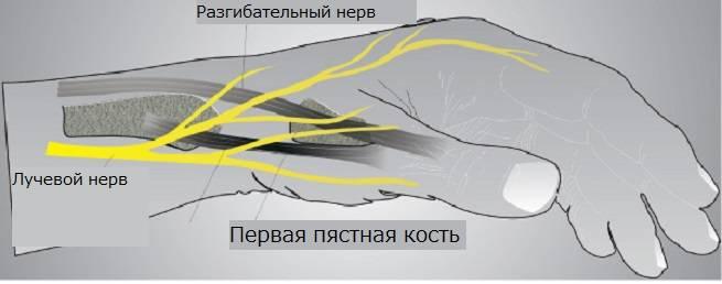 лфк при неврите лучевого нерва